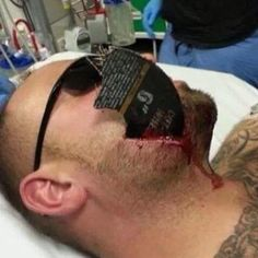 Wear your face shield people. Safety Pictures, Work Accident, Safety Fail, Welding Classes, Construction Safety, Safety First, Emergency Medicine, Workplace Safety, Safety Glass