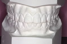 How your teeth could look! Teeth, Accent Chairs, Furniture, Home Decor, Upholstered Chairs, Decoration Home, Room Decor, Home Furniture, Interior Design
