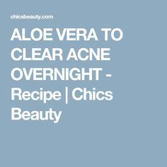 ALOE VERA TO CLEAR ACNE OVERNIGHT - Recipe   Chics Beauty