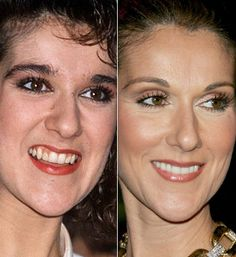 Celine Dion Plastic Surgery Always interesting what you can find when you type i… – Care – Skin care , beauty ideas and skin care tips Celine Dion, Celebrities Before And After, Celebrities Then And Now, Celebs Without Makeup, Plastic Surgery Photos, Stealing Beauty, Operation, Beauty Regimen, Beauty Makeup Tips