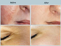 Have facial dermabrasion in te victor valley can recommend