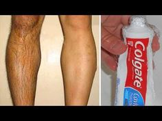 Colgate can remove unwanted hair in 5 minutes Hair Removal Diy, Laser Hair Removal, Leg Hair, Remover, Unwanted Hair, Facial Hair, Skin Care Tips, Dental, Serum