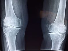 In a published study in the Journal of Bone and Joint Surgery, at least of people wait too long for Knee Replacement Surgery. Knee Replacement Surgery, Joint Replacement, Partial Knee Replacement, Types Of Arthritis, Arthritis Symptoms, Psoriatic Arthritis, Bone Fracture, Knee Surgery, Bones