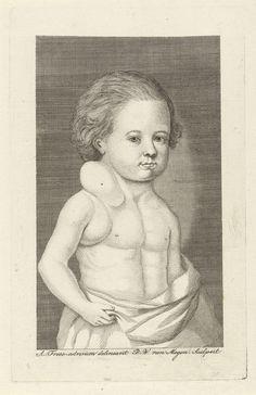 Pieter Willem van Megen | Jongen met een gezwel, Pieter Willem van Megen, 1760 - 1785 | Een jongen met ontbloot bovenlijf heeft een gezwel in zijn nek en rond zijn oksel.