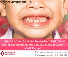 Children are more prone to cavities. Take them to Dentist regularly for healthy teeth & Gums! Childrens Dentist, Kids Dentist, Best Dentist, Root Canal Treatment, Dental Center, Healthy Teeth, Cosmetic Dentistry, Dental Implants, Oral Hygiene