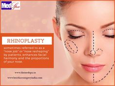 For women and men who are not happy with the shape and size of their nose, nose job, also known as rhinoplasty surgery offers an effective, time-tested and safe cosmetic solution. It can improve the balance of facial features so that people can discover lost confidence. It is also performed for correcting structural defects including those which trigger breathing difficulties.  #nose #nosejob #nosereshaping #nosesurgery #rhinoplasty #reductionrhinoplasty #augmentationrhinoplasty…