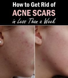 How to Get Rid of Acne Scars in Less Than a Week #AcneScars