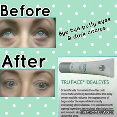TESTIMONIAL Sharing my results which I am so happy abouthuge improvement in my under eyes,they were so puffy and very bad dark circles before,I used it over 6 weeks using am and pm.Another fantastic product Ideal eyes