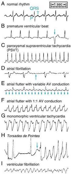 Heart Rhythms Made Easy Ecg Nursing School Tips, Nursing Notes, Nursing Tips, Nursing Schools, Study Nursing, Ob Nursing, Medical School, Medical Students, Nursing Students