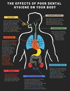 The Effects of Poor Dental Hygiene (Infographic)