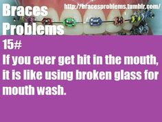 I always seemed to get hit in the mouth when I had braces. It felt horrible and … I always seemed to get hit in the mouth when I had braces. It felt horrible and then I had kanker sores all month. Braces Tips, Braces Off, Teeth Braces, Braces Humor, Dental Humor, Braces Problems, Braces Retainer, Getting Braces, Braces Colors