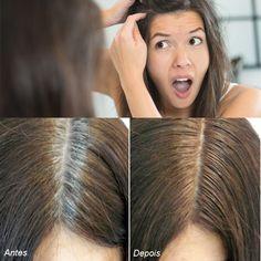 Cabelos Brancos - Certamente você pinta seus cabelos com tinturas cheias de  química, que, por ação cumulativa dessa química, poderão causar graves  doenças. a9b742de1d