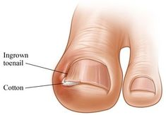 The Best Treatment For Toenail Fungus