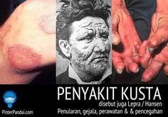 Kusta Adalah sebuah penyakit infeksi kronis luka kulit dan kerusakan saraf di lengan, kaki dan area kulit di sekitar tubuh. Yang disebabkan oleh bakteri Mycobacterium Leprae. Penyakit Kusta yang lama dikenal, disebut juga sebagai penyakit Lepra dan Hansen.  Bakteri Mycobacterium leprae ditemukan oleh seorang ilmuwan Norwegia bernama Gerhard Henrik Armauer Hansen pada tahun 1873 sebagai patogen yang