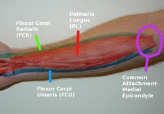 The forearm/wrist consists of the muscles that bend and straighten the wrist, namely the wrist flexors and extensors. This area is commonly injured with la Hand Therapy, Massage Therapy, Physical Therapy, Elbow Anatomy, Forearm Workout At Home, Yoga Muscles, Hand Surgery, Medical Massage, Body Map