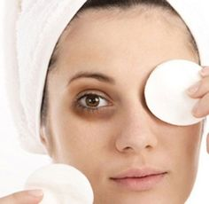 How To Remove Dark Circles Naturally-Quickly-Under Eyes If everyone is constantly requesting why you look so tired, then perhaps it's time to reduce puffy dark circles below your eyes. Here are the top 6 ways to get rid of dark circles fast.