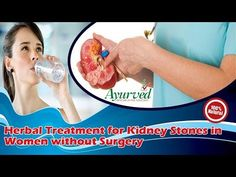 Herbal Treatment for Kidney Stones in Women without Surgery