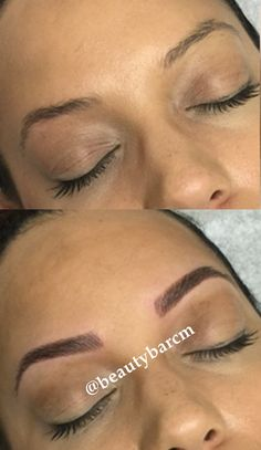 Microblading is a relatively new manual method. It is considered to be semi-permanent, as compared to the traditional hair stroke 3-D technique