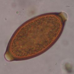 Whip worm egg - Treatment With Parasitic Worm Eggs Can Ease Intestinal Ills by Altering Gut Microbiota
