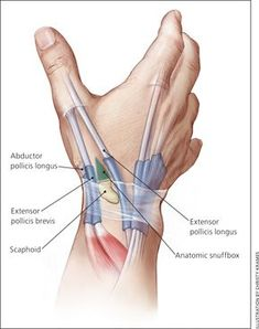 Evaluation and Diagnosis of Wrist Pain: A Case-Based Approach - American Family Physician hands Human Body Anatomy, Human Anatomy And Physiology, Muscle Anatomy, Wrist Anatomy, Hand Anatomy, Medical Anatomy, Medical Illustration, Anatomy Reference, Physical Therapy