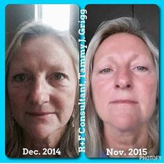 Tammy used Dove soap before trying Rodan + Fields.  She didn't think using 'real' skincare products was going to make a difference.  Now, she is so glad she gave it a try!! What a difference!!! Are you ready yet?  Http://lisaberg.myrandf.com. Take the Solution Tool and get a recommendation from the Drs. On where to start! #iloveskincare #realresults #RodanandFields #amazingskincare #skincare #beautifulskin