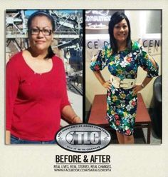 before and after results from drinking Iaso Tea. Go to www.LoseItBysummer.com