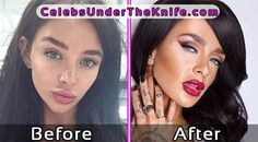 Mercedes Edison Pics Plastic Surgery Before and After #celebsundertheknife #celebs #celebrity #plasticsurgery #celebritysurgery