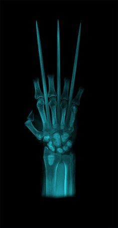 Wolverine x-ray. Not a Wolverine fan but I like this. Marvel Wolverine, Marvel Comics, Wolverine Claws, Heros Comics, Comics Anime, Hq Marvel, Logan Wolverine, Marvel Heroes, Fantasy Characters
