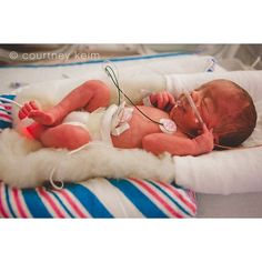 World Prematurity Day Photographing NICU Babies ❤ liked on Polyvore featuring baby