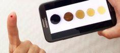 Un grupo de investigadores españoles consigue medir la anemia desde el móvil