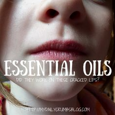 Essential Oils buzz has been in my ears for quite some time, but to be honest, I wasn't into them because I wasn't sure their cost was worth the risk. Now that we have additional income, andrecent health concerns that we'd rather not go the pharmaceutical route for, I found myself more intrigued. As the […]