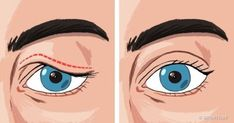 If you are struggling with saggy eyelids, then you must have gone through the frustrating process of applying make-up. The droopy eyelids make you look older, tired, and weary. Saggy Eyelids, Eyes Problems, Face Yoga, Face Massage, Anti Aging Tips, Look Younger, Skin Tightening, Dark Circles, Natural Remedies