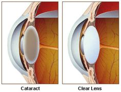 "If the ophthalmologist said that you should undergo cataract surgery, it means that the type of cataract that have caused loss of vision to the extent so serious that it could hinder daily activities. It often happens that the doctor deliberately waiting with the decision about the operation until the cataract has reached a state of ""readiness"