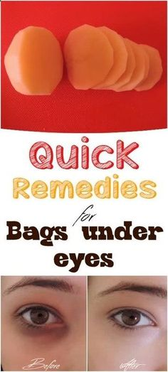 Quick Natural Remedies for bags under your eyes #DarkCirclesRemedyDIY