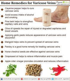 Some of the most effective home remedies for varicose veins include the use of olive oil, garlic, cayenne pepper, apple cider vinegar, witch hazel, parsley, horse chestnut, grapeseed oil, pine bark, marigold, and various lifestyle changes. #AppleCiderVinegarCellulite