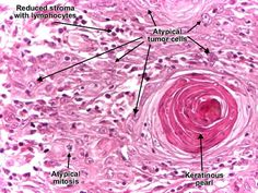 squamous cell carcinoma histology - Google Search