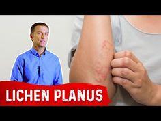 Lichen Planus: Best Remedy - YouTube