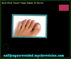Quick black toenail fungus remedy in pierron - Nail Fungus Remedy. You have nothing to lose! Visit Site Now