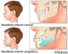 En algunas ocasiones la #ortodoncia se tiene que combinar con la cirugia para poder solucionar algunos tipos de #maloclusionesdentales