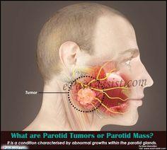 What are Parotid Tumors or Parotid Mass? Lymph Node Pain, Parotid Gland, Throat Pain, Salivary Gland, Lymph Nodes, Hip Bones, Health Motivation, Facial, Cancer