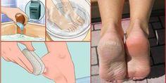 Cum sa aveti picioare moi si fine intr-un mod natural - reteta pe baza de bicarbonat, facuta in casa. | Pentru Suflet