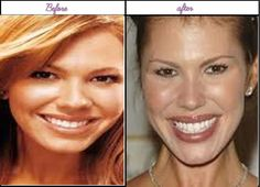 Look At After Before Plastic Surgery Pictures Of Nikki Cox Was She Greater Before? - http://www.aftersurgeryjob.com/plastic-surgery-pictures-nikki-greater/