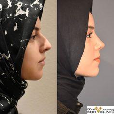 Nose Plastic Surgery, Nose Surgery, Celebrity Plastic Surgery, Nose Fillers, Botox Fillers, Pretty Nose, Perfect Nose, Nose Shapes, Nose Contouring