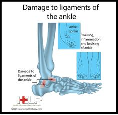 Damage to Ligaments of Ankle