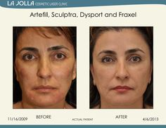 Patient treated with Artefill, Sculptra, Dysport and Fraxel at La Jolla Cosmetic Laser Clinic.