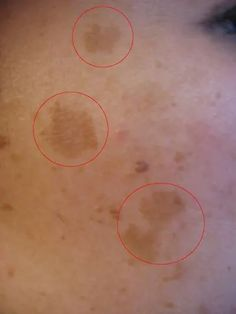 How to Remove Dark Patches and Spots From Your Face - Bellatory Beauty Care, Beauty Skin, Beauty Hacks, Natural Treatments, Skin Treatments, Skin Tips, Natural Remedies