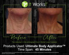 Before After Photo www.rhinofit.myitworks.com 954 559 6888