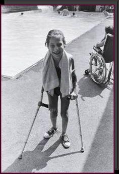 Spina Bifida Fact Sheet