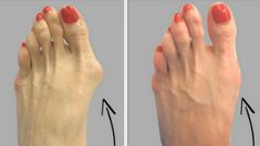 3 Simple But Effective Ways To Get Rid Of Hallux Valgus Without Going Under The Knife Healthy Top Info Dental Hygiene School, Dental Humor, Oral Hygiene, Natural Remedies For Allergies, Allergy Remedies, Herbal Remedies, Natural Cures, Achilles Tendonitis Treatment, Plantar Fasciitis Treatment