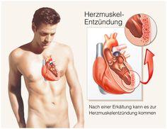 Eine Herzmuskelentzündung kann unabhängig vom Alter jeden Menschen treffen.